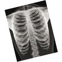 Roylco Röntgenbilder Mensch